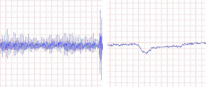 Elimination of line noise