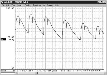 Data Acquisition Waveform - mmHg