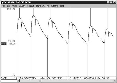 Data Acquisition Waveform - Peak and Valley Capture