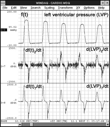 Data Acquisition Waveform - Differentiation Function on ventricular pressure waveform