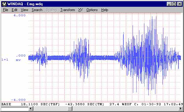 Data Acquisition Waveform - raw EMG signal