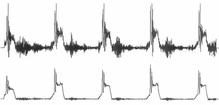 Data Acquisition Waveform - 11 point moving average filter applied