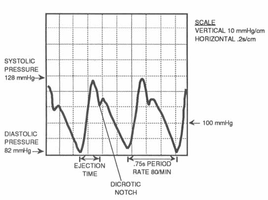 Data Acquisition Waveform - typical arterial blood pressure