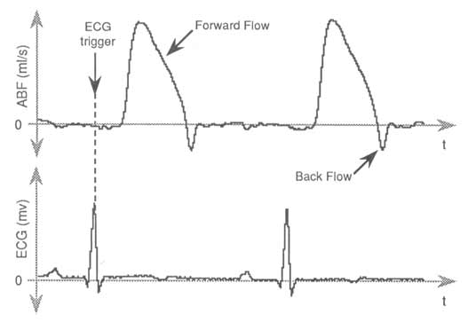 Data Acquisition Waveform - aortic blood flow and ECG signals